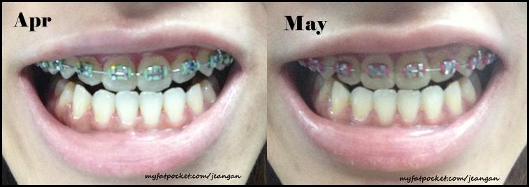 braces apr n may