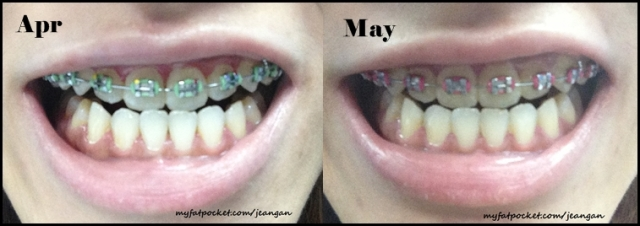 braces apr n may