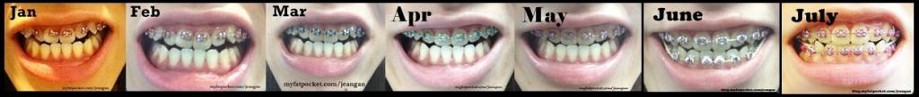 braces jan to jul
