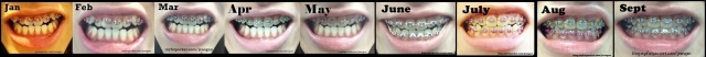 braces jan to sept