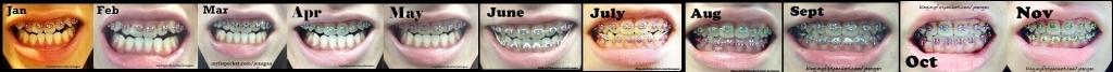 braces jan to nov