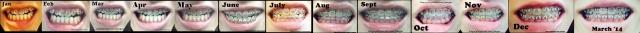 braces jan 13 to mar 14