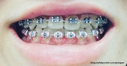 braces march 2014