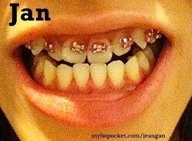 jan braces